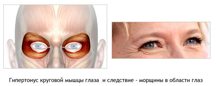 почему образуются ямочки на треугольной мышце под губам Termoline оптом мужское