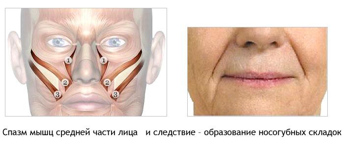 удаляет почему образуются ямочки на треугольной мышце под губам значит, что
